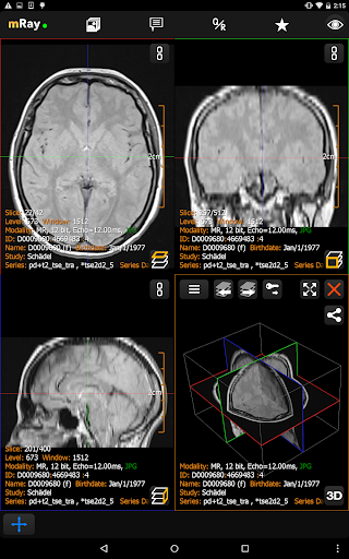 mRay - DICOM Viewer