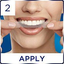 Miếng dán làm trắng răng ích lợi đi liền tác hại