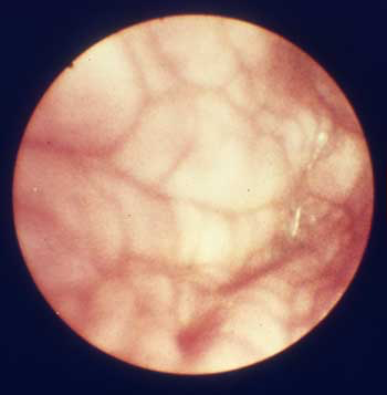 Vista cercana de unos escasos centímetros cuadrados de la mucosa vaginal canina obtenida con un endoscopio de fibra óptica durante el metaestro temprano, cerca de 9 días después del pico de LH