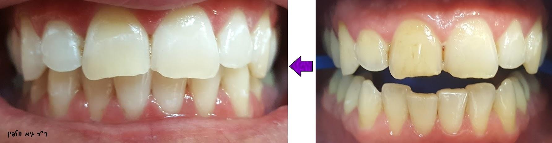 רפואת שיניים - אסתטיקה דנטלית - ד''ר גיא וולפין - הלבנת שיניים תוך שעה במרפאה