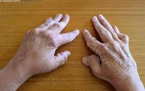 Kuvahaun tulos haulle sormet