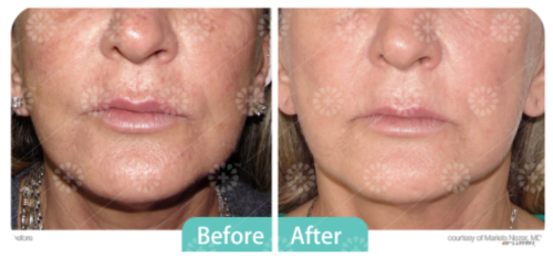 Treatment - IPL/Limelight | Arcadia Medical & Cosmetic Center