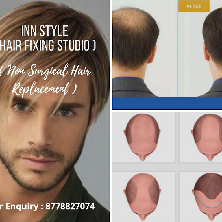 Inn Style Hair Fixing Studio Hair Replacement Service In Chromepet