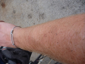 Photo: arm is covered in gnats