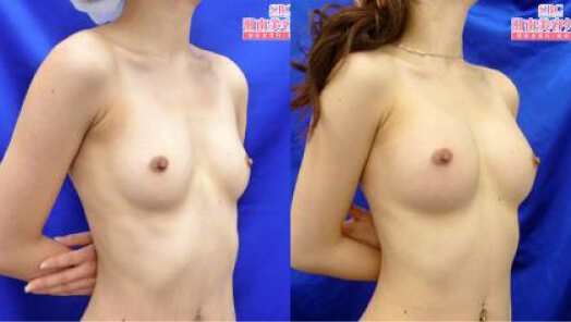 アキーセル併用コンデンスリッチ豊胸 術後3ヶ月