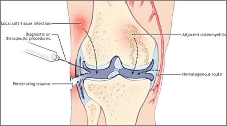 Hasil gambar untuk Septik Artritis