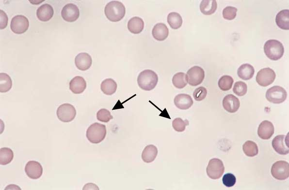 Feline blood. Heinz body hemolytic anemia...