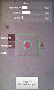 Doctor Mole - Skin cancer app screenshot for Android