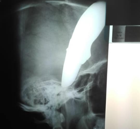 An X-ray shows how deeply the knife went into cyclist Shaun Wayne's head when he was stabbed on Monday.
