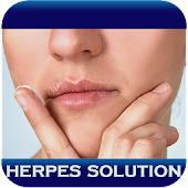 Herpes Solution