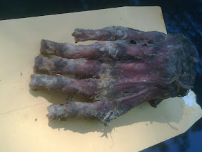 Photo: This is what a bear paw looks like when the claws have been removed and it is partially cleaned (probably by a taxidermist).  NOT A FORENSIC CASE.