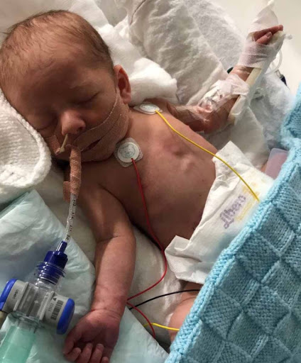 I watched my newborn son's heart pumping after his tiny torso was left open for three days after op