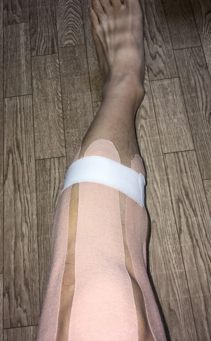 膝の痛みにオススメのテーピング③