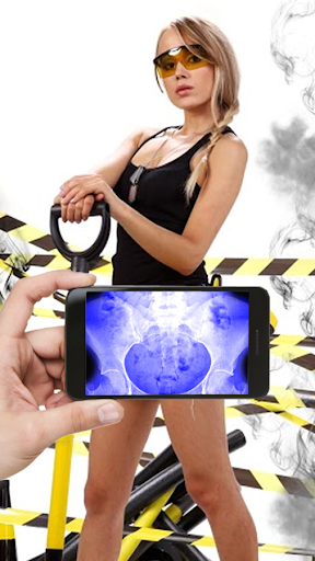 Mobile X-Ray Simulation