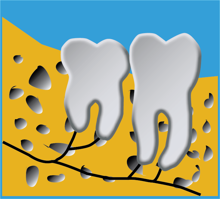 Image of wisdom tooth ideal position in bone