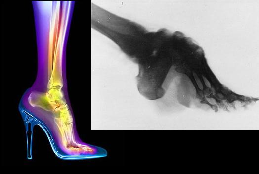 high-heel-xray-comparison.jpg