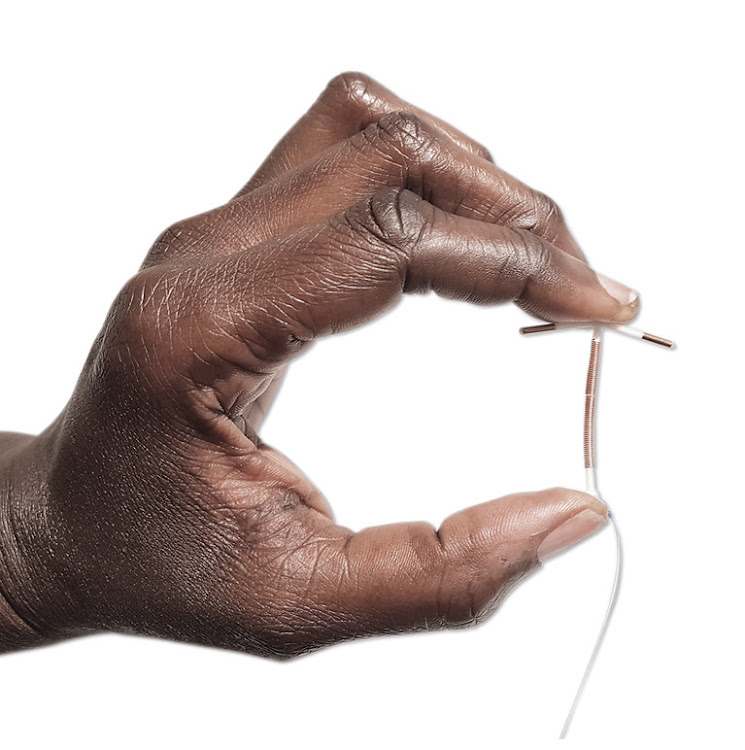 The copper coil (or IUD) is made of plastic and copper. It's put into the womb by a doctor or nurse, and lasts 5 to 10 years.The IUD is popular because it has no hormones.