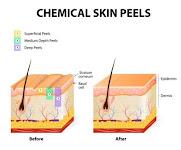 Chemical Peel Depth