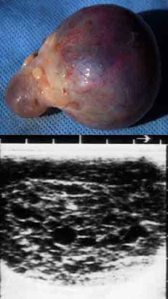 Hemorrhagic Follicle/Cyst. Gross (top) and ultrasonographic (bottom) appearance of a hemorrhagic follicle. These structures can persist for several weeks and may develop enough luteal tissue to produce progesterone.