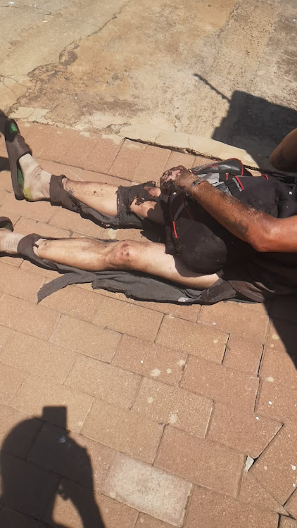 A suspected cable thief was badly burnt after allegedly tampering with a mini-substation in East Town, Johannesburg.