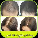 وصفة الثوم لعلاج تساقط الشعر icon