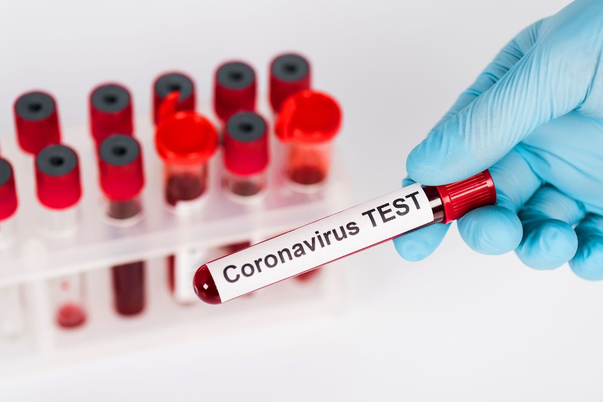 Discovery to pay for all Coronavirus care for members