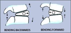 backpain & posture - discs pic F & B