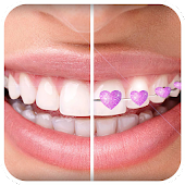 Braces App that look Real for Boys & Girls