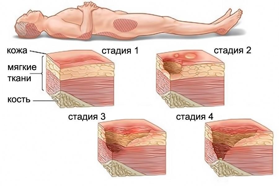 https://stoprana.ru/wp-content/uploads/2018/07/1552553835_1521210519_prolezhni2.jpg