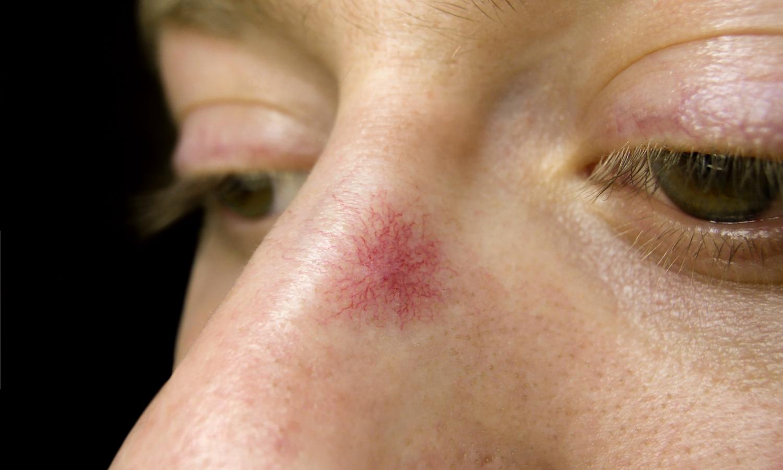 laserbehandeling spinnetje of roodheid. Huidverbetering Dr. Charlotte Nelissen