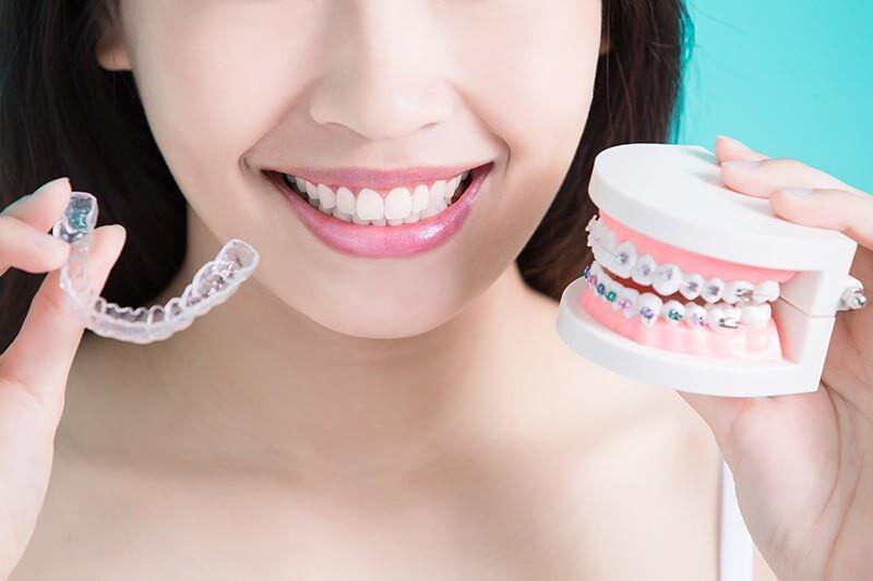 Alinhador Estético x Aparelho Metálico: qual é mais rápido? - Dental Arte