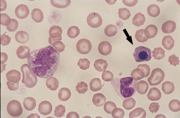 Canine monocytes. Monocytes are slightly larger than a neutrophil and have a blue-grey cytoplasm, lobulated nucleus, and a lacy chromatin pattern. The monocyte (left) contains a few round clear cytoplasmic vacuoles. A band neutrophil and an NRBC (arrow) are on the right (100x).