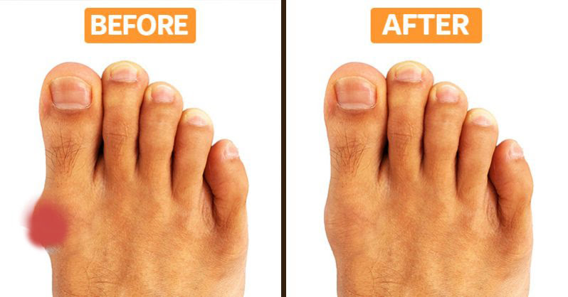 Don't Let Bunions Control Your Life, Try This At-Home Bunion Treatment to Relieve Your Pain Today