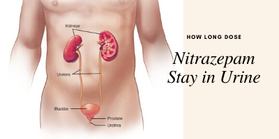 Nitazepam stay in Urine