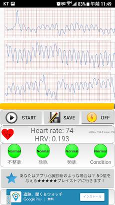 心臓 診断(不整脈)のおすすめ画像3