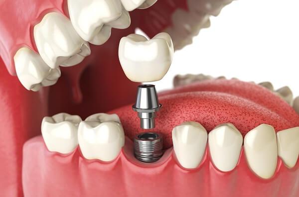 Trồng răng implant mất bao lâu? Thời gian thực hiện trồng implant