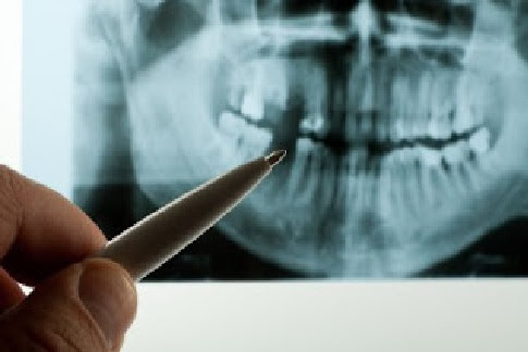 Cognitive Decline Linked To Periodontal Disease
