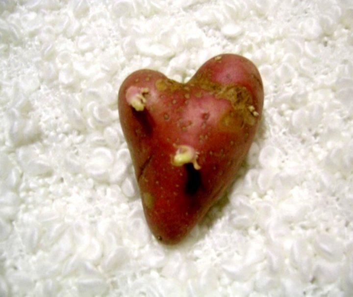 Tubero cardiaco di annap.