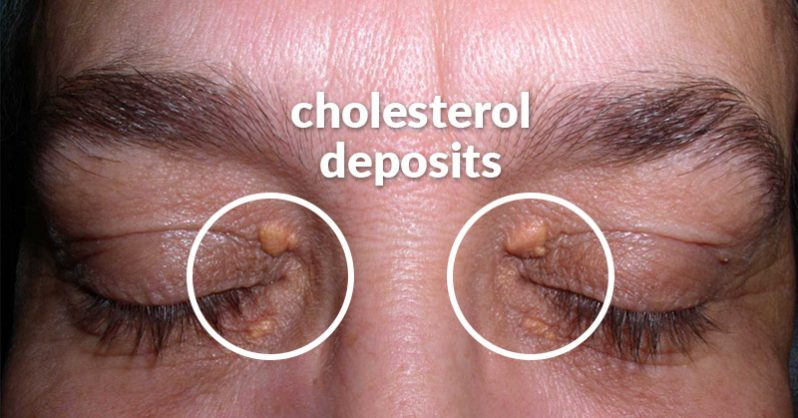 Cholesterol deposits around the eyes: Causes and natural remedies