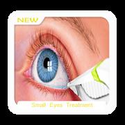 Small Eyes Treatment