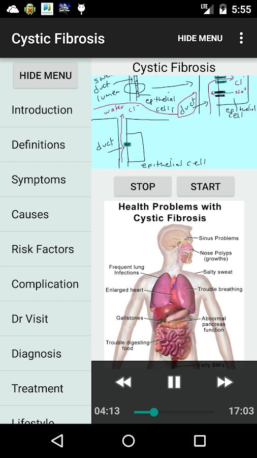 the description of the causes prevalence and treatment of cystic fibrosis Cystic fibrosis is a hereditary disease that causes the body to produce thick and sticky mucus that can clog the lungs and obstruct the pancreas.