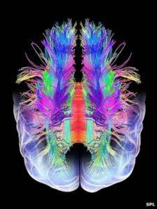 dreams_brain-scan