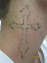 Photo: Pre 5th Laser Tattoo Removal Treatment at Las Vegas Dermatology