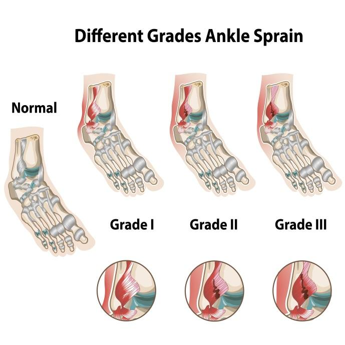 The Three Degrees (types) of Ankle Sprains
