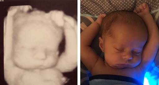 Thích thú với hình ảnh bé 3 tuần tuổi có tư thế ngủ như lúc nằm trong bụng mẹ