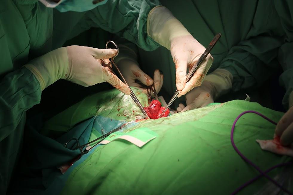 Các bác sĩ BVQT Vinh đang tiến hành phẫu thuật cắt bỏ bướu cổ cho bệnh nhân H