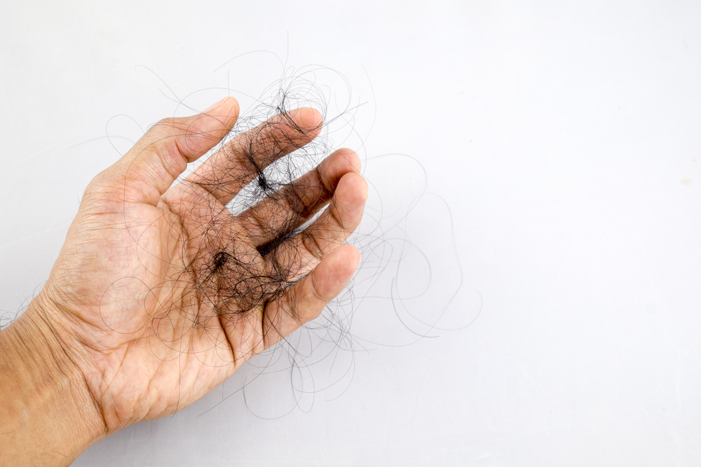 Top Nutrients To Help Prevent Hair Loss