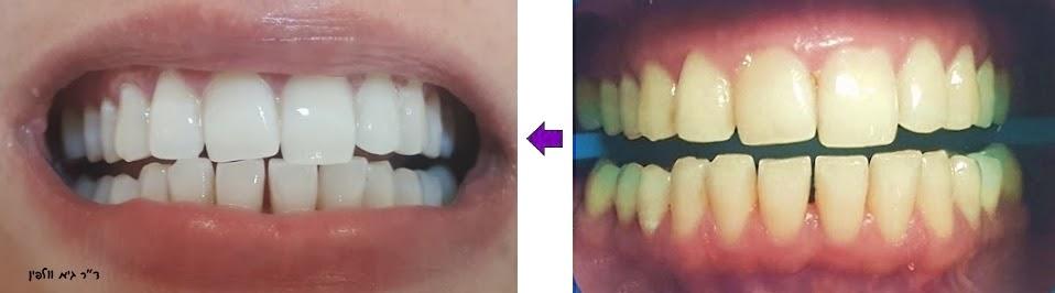 """הלבנת שיניים תוך שעה במרפאה - ZOOM, ד""""ר גיא וולפין"""