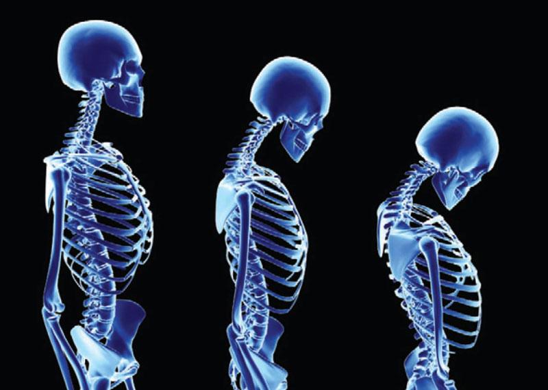 Osteoporosis Alternative Treatments
