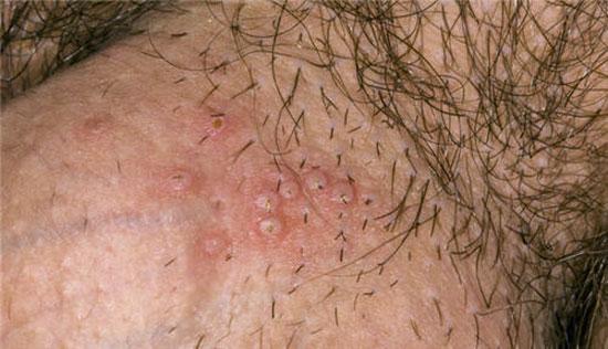 KmcatAETUO5sGOH42lV23QZHuUZOl6NB5Tw6GZqXfMi UOw5aRp1O0GHTyI RUZG7wD4zmZdoZnb NaY12lEbBaXJ2wFf6RJLOxrCa4BlEurTeKc85I mymSaCGpWm996boqGFVt - Mụn rộp sinh dục có chữa được không?